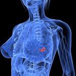 breast_cancer_start_250X250